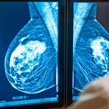УЗД чи мамографія?